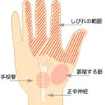 手首のしびれ(手根管症候群)