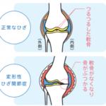 変形性膝関節症(O脚)について
