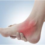 足の土踏まず辺りの痛み(有痛性外脛骨)