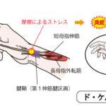 ド・ケルバン病(親指付け根の痛み)