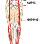 坐骨神経の圧迫
